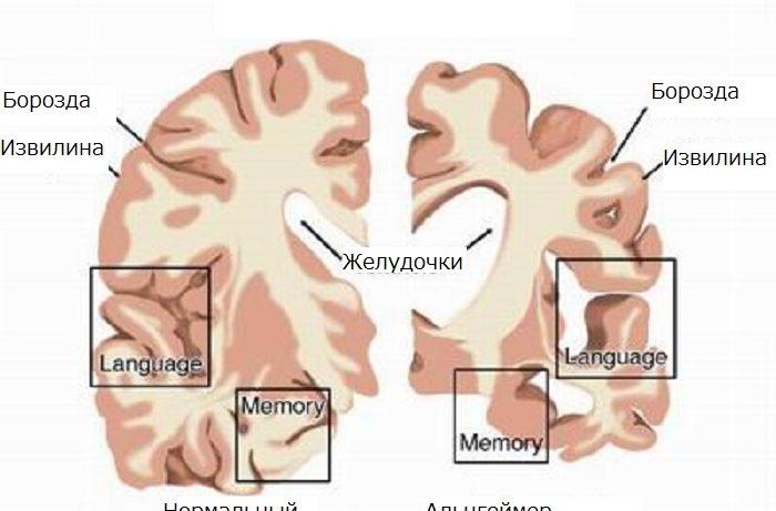 Новое средство обещает решить проблему болезни Альцгеймера