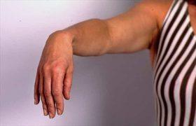 Артрит плечевого сустава: симптомы