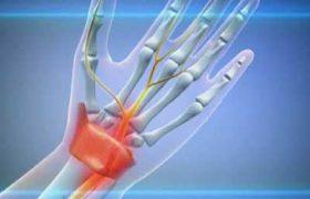 Хроническая травма от повторяющегося напряжения