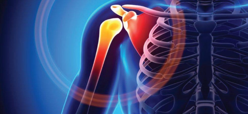 Ушиб плеча: лечение в домашних условиях