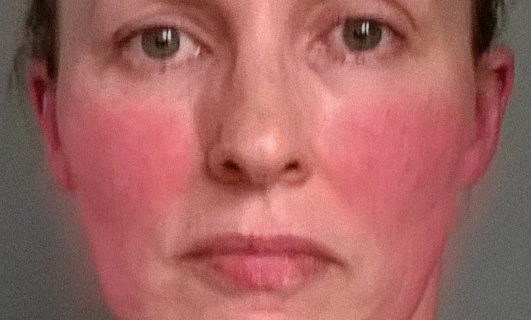 Эритрофобия. Что делать, если на лице всё написано?