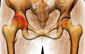 Артрит тазобедренного сустава: причины