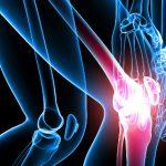 Магниевый дефицит – причина боли в суставах?