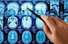 Рассеянный склероз: диагноз и лечение