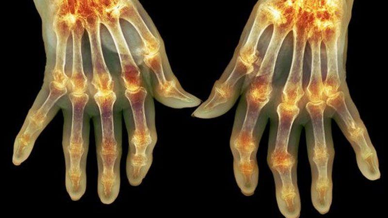 Чем опасен идиопатический артрит?