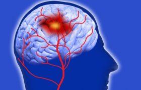 Таламический синдром: что это такое