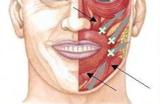 Почему дергается нижняя губа: ищем причину