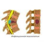 Вертеброгенная миелопатия