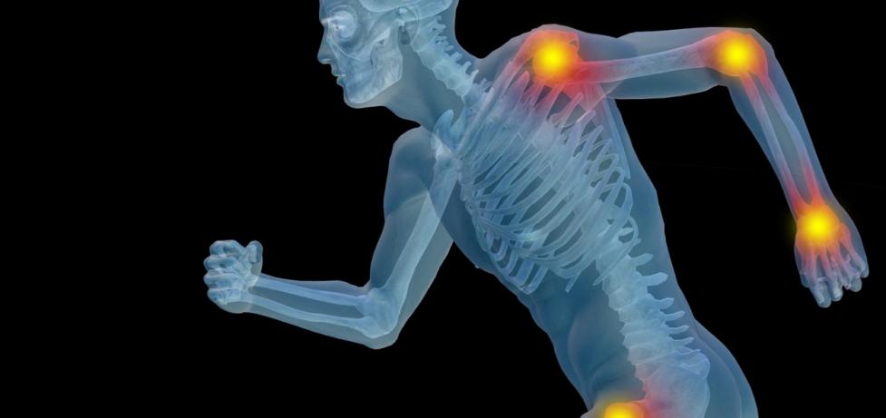 Артрит и артроз: в чём разница, симптомы и лечение заболеваний суставов