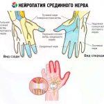 Нейропатия срединного нерва руки
